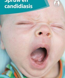 Spruw En Candidiasis (PDF)